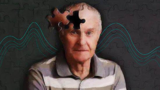 阿尔兹海默症2
